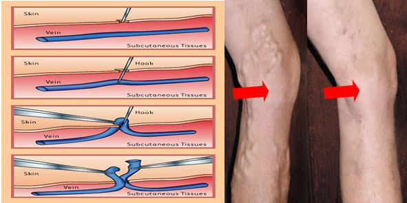 Лечение варикоза у мужчин в домашних условиях